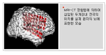 뇌전극.png